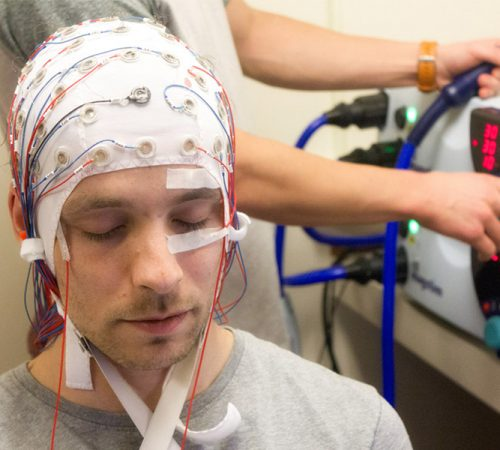 Treatment of Psychiatric Patients with Electrocardiogram Electroconvulsive Therapy