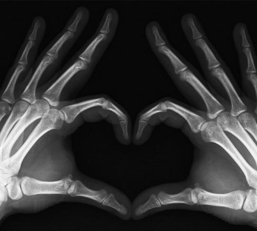 What is X-ray (Radiography)